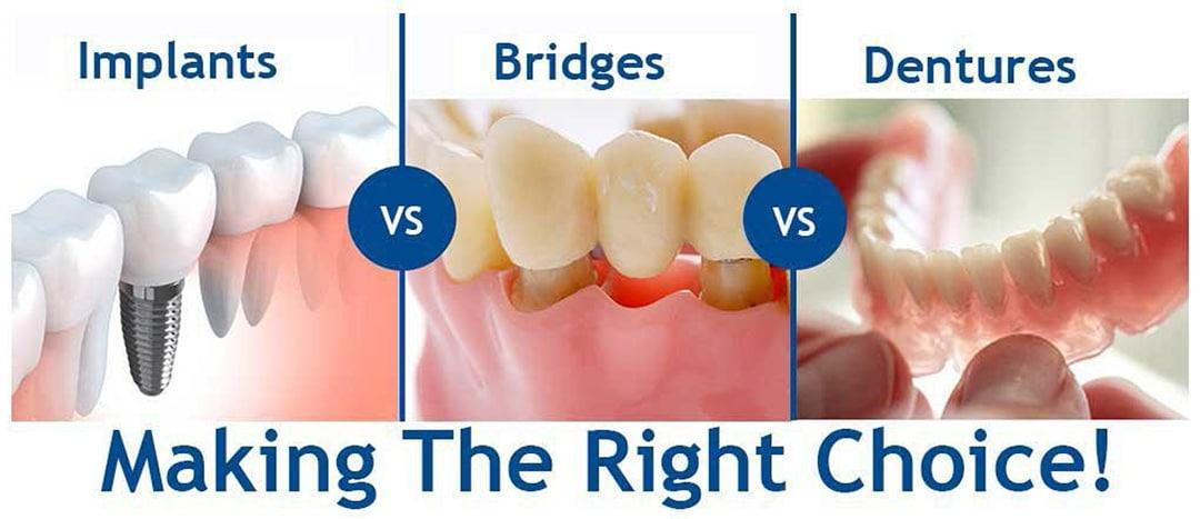 Implants Vs Bridges Dentures