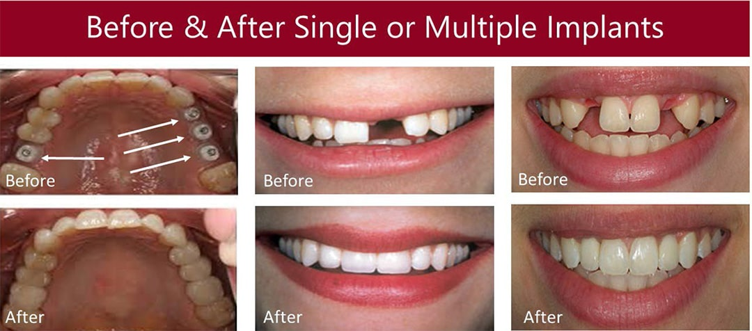Before & After Pictures of Dental Implants Treatment