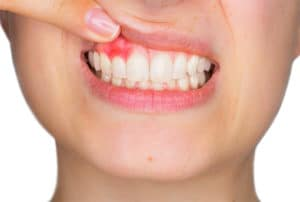 Gum Disease Affect Body Health