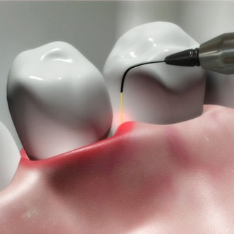 Gum Disease Therapy