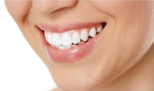 How to Keep Your Teeth White | Dixon Dental