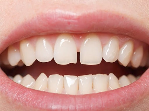 Gapped Front Teeth
