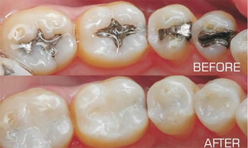 Silver Fillings vs White Fillings